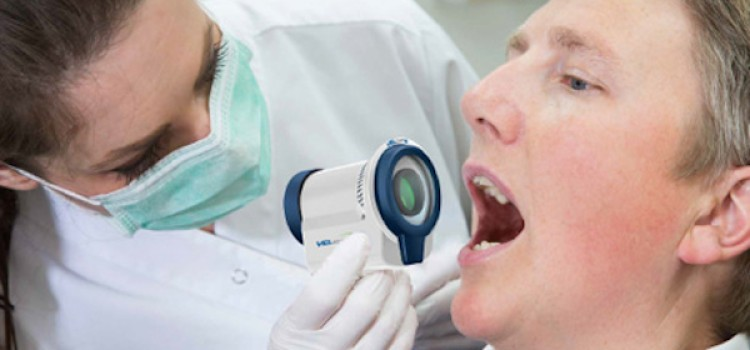 London Drugs set to launch oral cancer screenings
