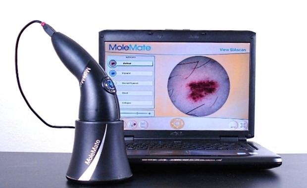 MedXHealth MoleMate mole scanning system